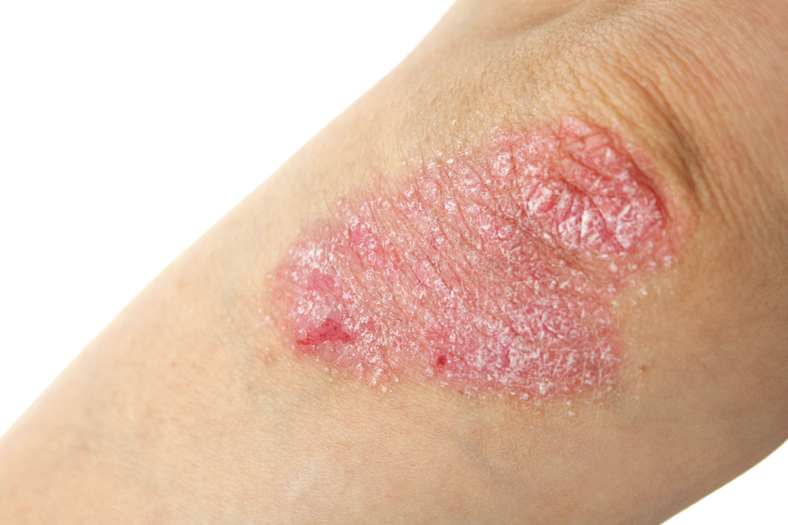 PSORIASIN®- A Treatment For Your Psoriasis?